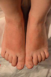 Völlig verbrannte Füße