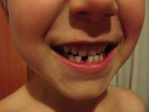 Highlight für uns und unseren Sohn: Die erste Zahnlücke!